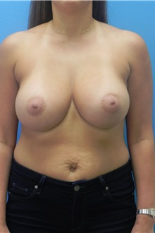 Breast Augmentation After Photo by Michael Epstein, MD; Northbrook, IL - Case 27553