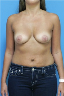 Breast Augmentation Before Photo by Michael Epstein, MD; Northbrook, IL - Case 27553