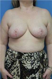 Breast Reduction After Photo by Michael Epstein, MD; Northbrook, IL - Case 27559