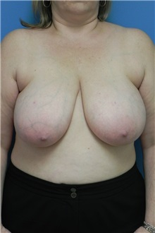Breast Reduction Before Photo by Michael Epstein, MD; Northbrook, IL - Case 27559