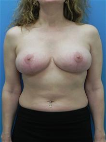 Breast Lift After Photo by Michael Epstein, MD; Northbrook, IL - Case 27560