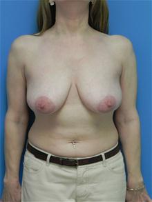 Breast Lift Before Photo by Michael Epstein, MD; Northbrook, IL - Case 27560