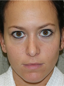 Rhinoplasty After Photo by Michael Epstein, MD; Northbrook, IL - Case 27720