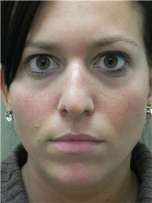 Rhinoplasty Before Photo by Michael Epstein, MD; Northbrook, IL - Case 27720