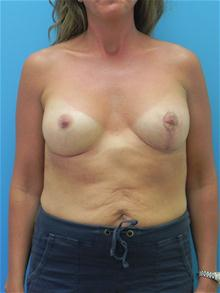 Breast Augmentation After Photo by Michael Epstein, MD; Northbrook, IL - Case 27878
