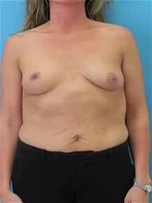 Breast Augmentation Before Photo by Michael Epstein, MD; Northbrook, IL - Case 27878