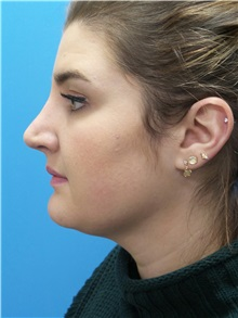 Rhinoplasty After Photo by Michael Epstein, MD; Northbrook, IL - Case 31031