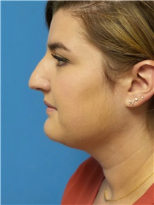 Rhinoplasty Before Photo by Michael Epstein, MD; Northbrook, IL - Case 31031