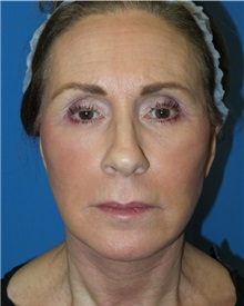Facelift After Photo by Michael Epstein, MD; Northbrook, IL - Case 31054