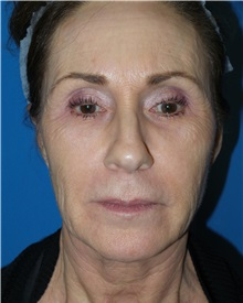 Facelift Before Photo by Michael Epstein, MD; Northbrook, IL - Case 31054