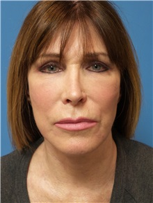Facelift After Photo by Michael Epstein, MD; Northbrook, IL - Case 31057