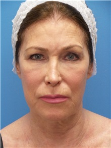 Facelift Before Photo by Michael Epstein, MD; Northbrook, IL - Case 31057