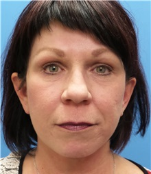 Facelift After Photo by Michael Epstein, MD; Northbrook, IL - Case 31059