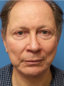 Facelift After Photo by Michael Epstein, MD; Northbrook, IL - Case 31060