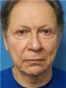 Facelift Before Photo by Michael Epstein, MD; Northbrook, IL - Case 31060
