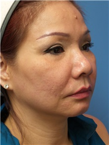 Facelift Before Photo by Michael Epstein, MD; Northbrook, IL - Case 31066