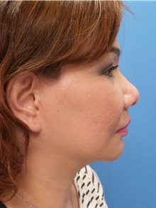 Facelift After Photo by Michael Epstein, MD; Northbrook, IL - Case 31066