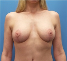 Breast Augmentation After Photo by Michael Epstein, MD; Northbrook, IL - Case 31337