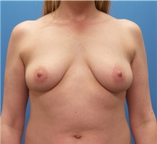 Breast Augmentation Before Photo by Michael Epstein, MD; Northbrook, IL - Case 31337
