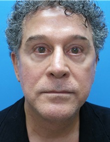 Facelift After Photo by Michael Epstein, MD; Northbrook, IL - Case 31453