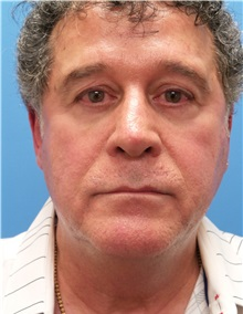 Facelift Before Photo by Michael Epstein, MD; Northbrook, IL - Case 31453