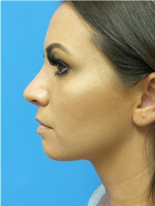 Rhinoplasty After Photo by Michael Epstein, MD; Northbrook, IL - Case 31771