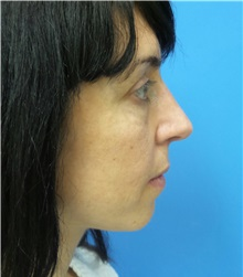 Rhinoplasty After Photo by Michael Epstein, MD; Northbrook, IL - Case 32016