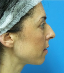 Rhinoplasty Before Photo by Michael Epstein, MD; Northbrook, IL - Case 32016