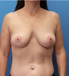 Breast Lift After Photo by Michael Epstein, MD; Northbrook, IL - Case 32265