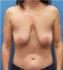 Breast Lift Before Photo by Michael Epstein, MD; Northbrook, IL - Case 32265