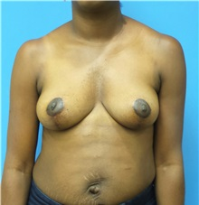 Breast Lift After Photo by Michael Epstein, MD; Northbrook, IL - Case 32266
