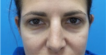 Eyelid Surgery After Photo by Michael Epstein, MD; Northbrook, IL - Case 32351