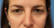 Eyelid Surgery Before Photo by Michael Epstein, MD; Northbrook, IL - Case 32351