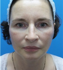 Facelift After Photo by Michael Epstein, MD; Northbrook, IL - Case 32396
