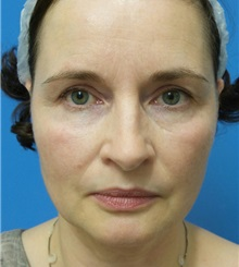 Facelift Before Photo by Michael Epstein, MD; Northbrook, IL - Case 32396