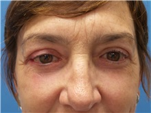 Eyelid Surgery After Photo by Michael Epstein, MD; Northbrook, IL - Case 32414