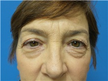 Eyelid Surgery Before Photo by Michael Epstein, MD; Northbrook, IL - Case 32414
