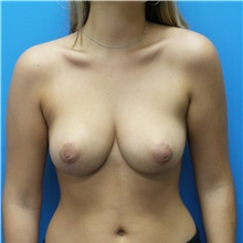 Breast Reduction After Photo by Michael Epstein, MD; Northbrook, IL - Case 32520
