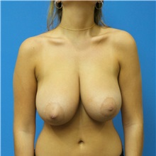 Breast Reduction Before Photo by Michael Epstein, MD; Northbrook, IL - Case 32520