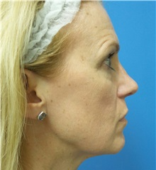 Rhinoplasty After Photo by Michael Epstein, MD; Northbrook, IL - Case 32823