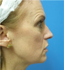 Rhinoplasty Before Photo by Michael Epstein, MD; Northbrook, IL - Case 32823