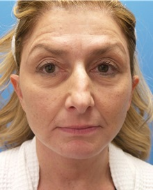 Facelift After Photo by Michael Epstein, MD; Northbrook, IL - Case 32923