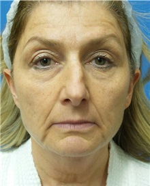Facelift Before Photo by Michael Epstein, MD; Northbrook, IL - Case 32923