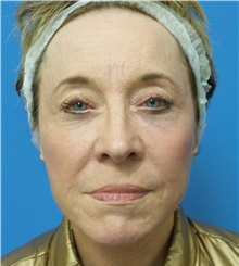 Facelift After Photo by Michael Epstein, MD; Northbrook, IL - Case 33398