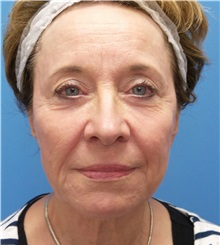 Facelift Before Photo by Michael Epstein, MD; Northbrook, IL - Case 33398