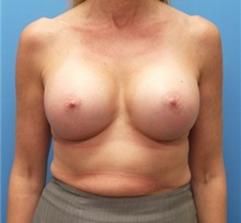 Breast Augmentation After Photo by Michael Epstein, MD; Northbrook, IL - Case 33852
