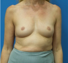 Breast Augmentation Before Photo by Michael Epstein, MD; Northbrook, IL - Case 33852