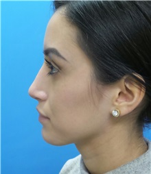 Rhinoplasty After Photo by Michael Epstein, MD; Northbrook, IL - Case 34098