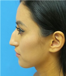 Rhinoplasty Before Photo by Michael Epstein, MD; Northbrook, IL - Case 34098