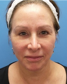 Facelift After Photo by Michael Epstein, MD; Northbrook, IL - Case 34608